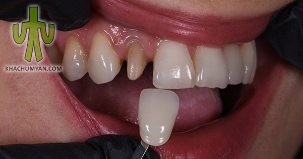 Artificial dental crowns